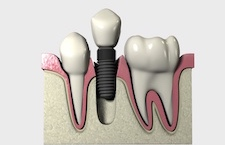 Digital Occlusal Analysis Implant Applications