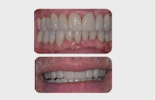 Prosthodontics Digital Occlusion